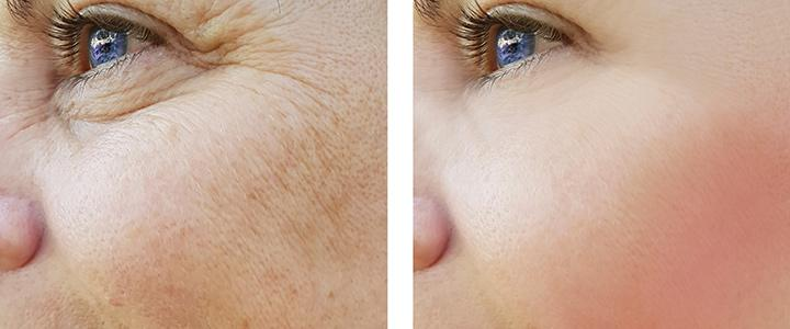 Things to know about skin rejuvenation